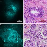 CARS and H&E images of human prostate glands.