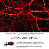 Improve Your Image - Rat Hippocampus