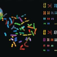 SKY (Spectral Karyotyping of Human Chromosomes)